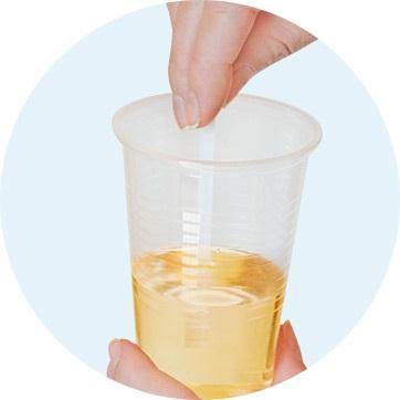 Bruciore alle urinaria e incontinenza